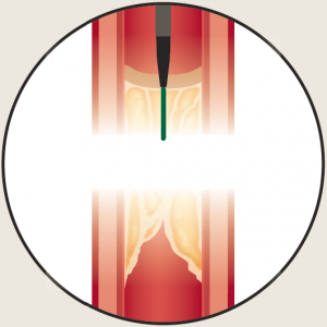 ambiguous-cto-drilling