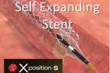 Xposition S – Self Expanding DES