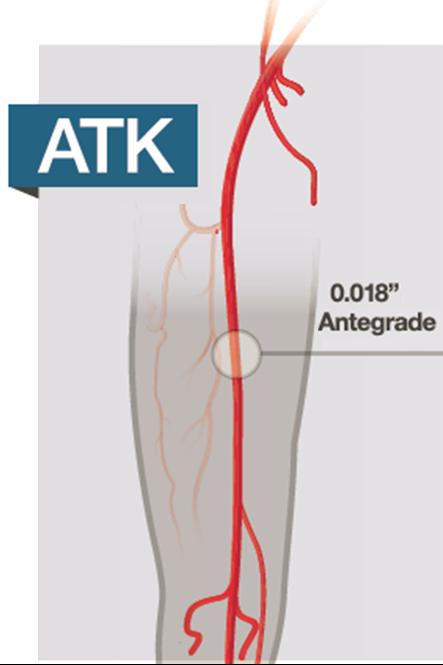 Asahi Peripheral Leg – Top Ny