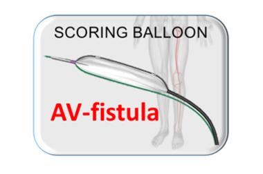 Scoring Balloon, Scoreflex AV-FISTULA
