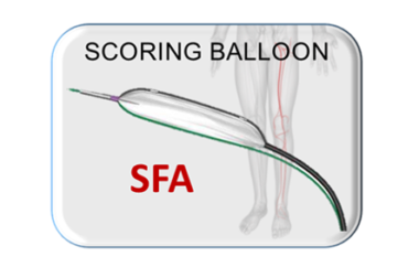 Scoring Balloon, Scoreflex SFA